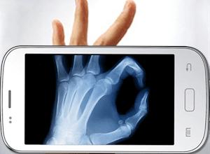 عمل أشعة X-Ray بهاتفه الأندرويد